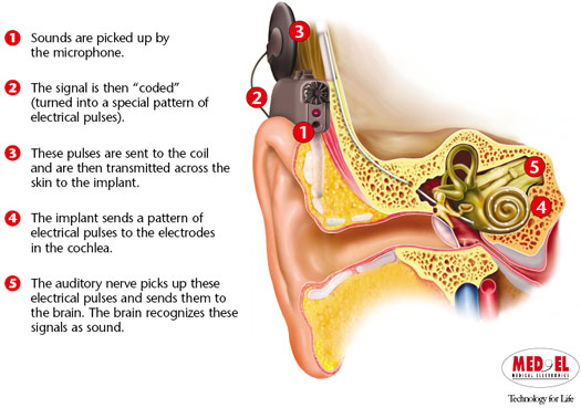 Cochlear Implant Eastern Virginia Medical School Evms Norfolk