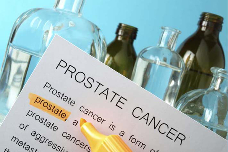 A federal task force is changing course and recommending routine screening for prostate cancer.