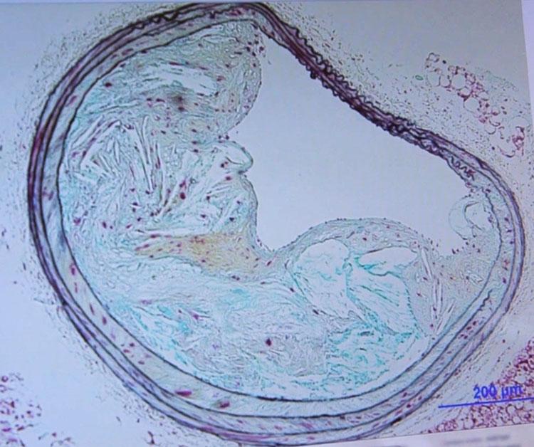 Atherosclerosis slide